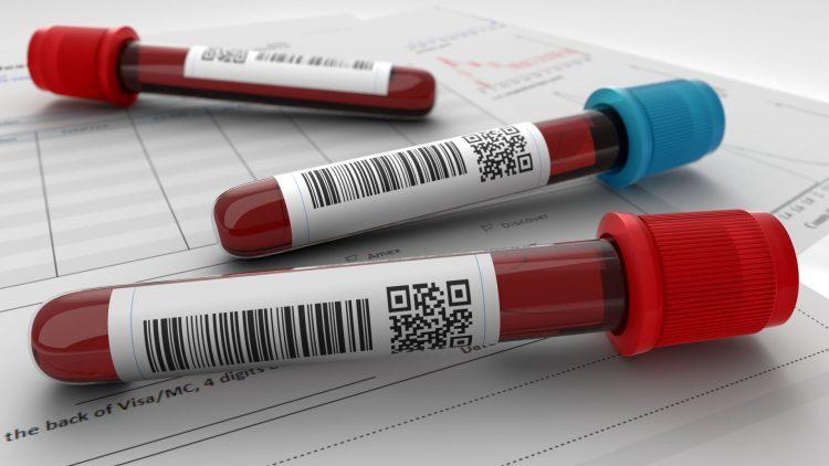Bluttest: Arthrose früh erkennen