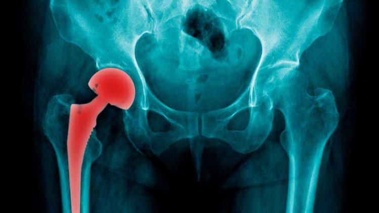 Röntgenaufnahme eines künstlichen Hüftgelenks