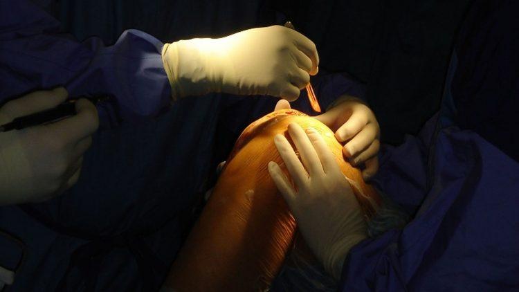 Chirurg macht den Hautschnitt bei einer Knieoperation