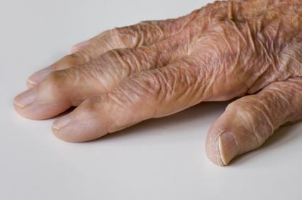 Fingergelenkarthrose