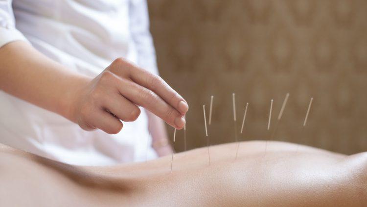 Hand setzt Akupunkturnadeln auf einen Rücken