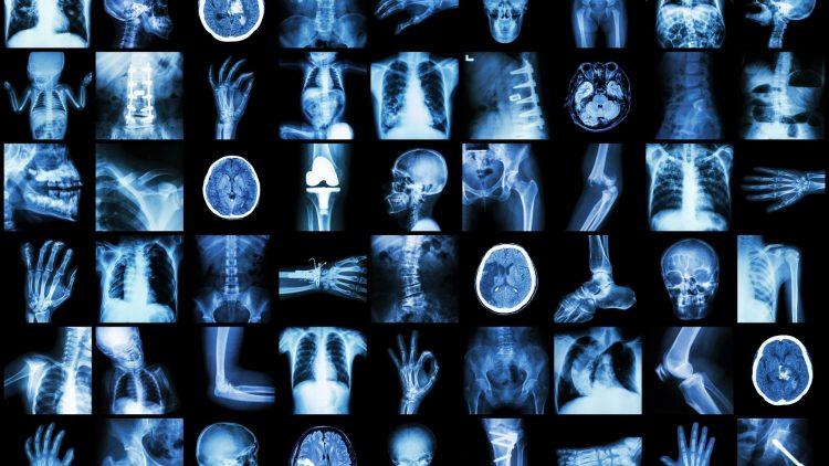 Multiple Röntgenbilder von Knochen und Gelenken