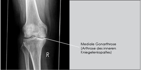 Kniegelenkarthrose im Alter