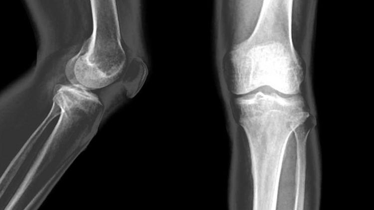 Röntgenbilder von Kniegelenk