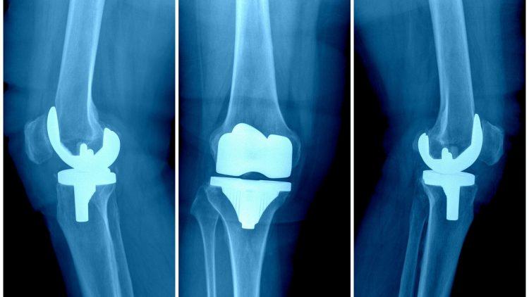 Drei Röntgenbilder von Knieprothesen