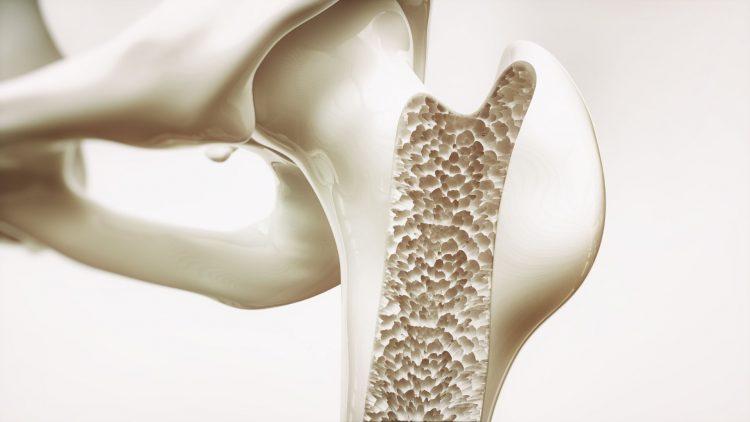 Hüftgelenkmodell aus Kunststoff