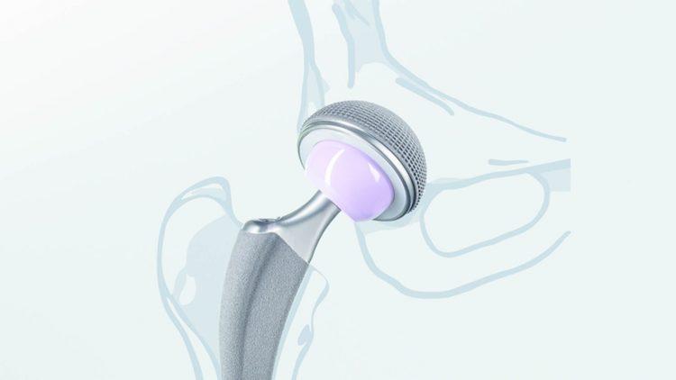 Hüftprothesenimplantat