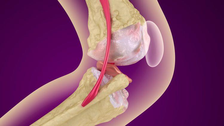 Kniezeichnung mit Arthrose