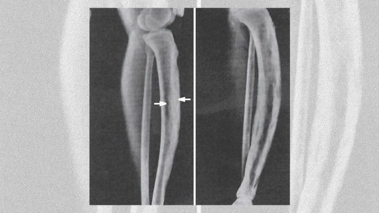 Röntgenbilder eine Pageterkrankung am Unterschenkel