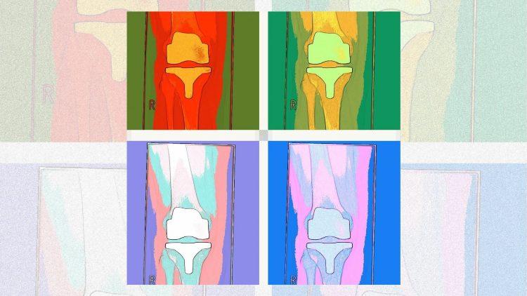 Farbige Bilder mit Knieprothesen
