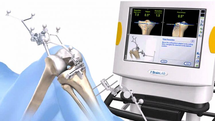 Computernavigationsinstrumente in der Knieendoprothetik