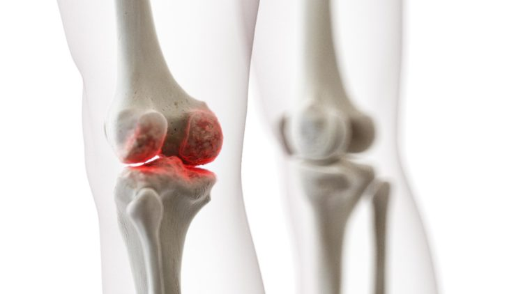 Schmerzendes Kniegelenk bei Arthrose